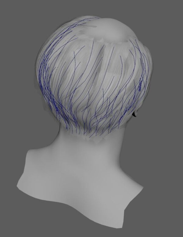 hair_placement_02